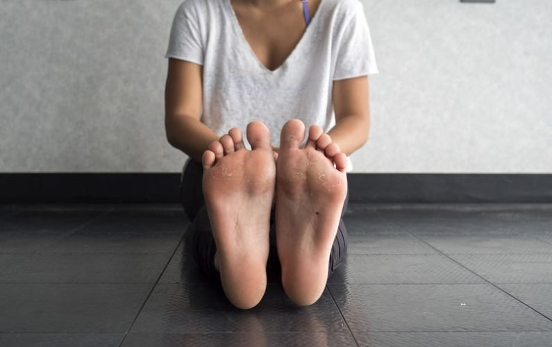 Tips For How To Remove Calluses Naturally From Hands And Dry Feet